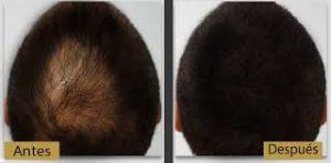 Imagen antes y después de la terapia laser capilar