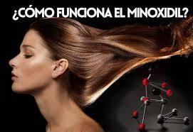 funciona el minoxidil en la mujer