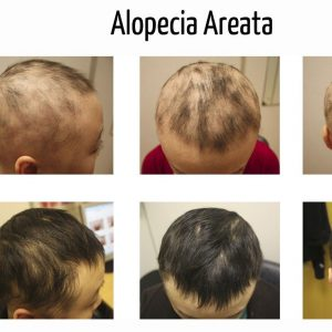 Alopecia areata causas