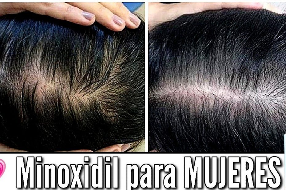 Minoxidil para Mujeres