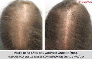 minoxidil mujer antes y despues