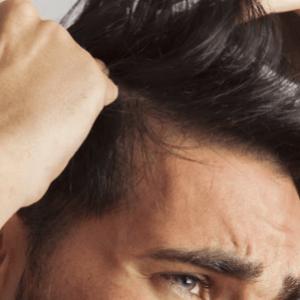Métodos para tratar la caída del cabello